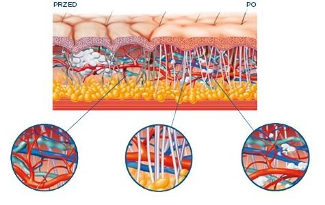 redukcja cellulitu pruszcz gdański